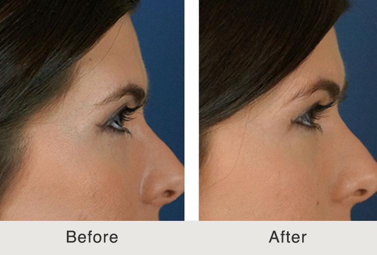 Before & After Non-Surgical Browlift - Carolina Facial ...